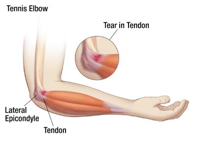 Micro - Trauma caused by tennis elbow