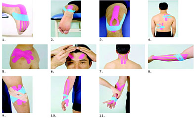 c80dd5a55326 For the first 10 years, orthopedists, chiropractors, acupuncturists and  other medical practitioners were the main users of Kinesio Taping®.